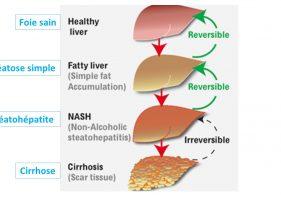 Stéatose hépatique : quelle est cette maladie est comment la traiter ?